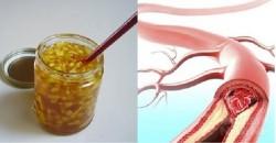 Công thức vàng làm sạch mạch máu, giảm mỡ máu: Bài thuốc nên có trong mọi gia đình