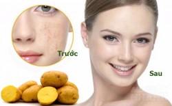 Chữa nám da đơn giản từ khoai tây và nước chanh