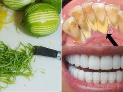 Nhai vỏ chanh trong 3 phút, cao răng, mảng bám ố vàng cứng như đá cũng tự bong ra chỉ sau 2 lần áp dụng