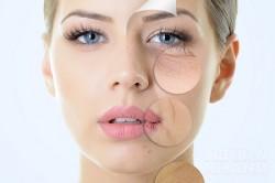 4 biện pháp dân gian giải quyết tất tần tật các vấn đề về da