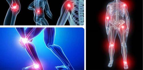 Proteoglycan- Glucosamin: Đâu là giải pháp tối ưu trong điều trị bệnh xương khớp, 96396, Chị Hạnh, Blog MuaBanNhanh, 02/12/2020 13:01:30