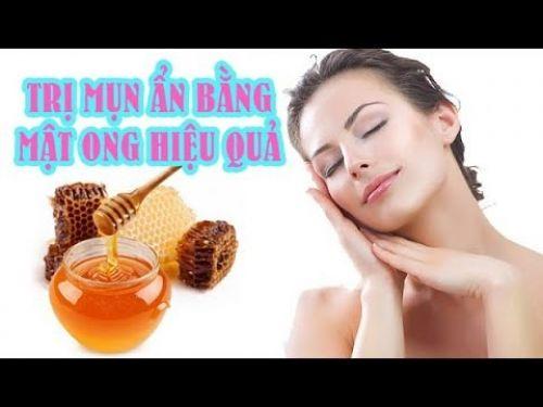 Cách trị mụn ẩn bằng mật ong, 96665, Đông Y Gia Truyền Tấn Khang, Blog MuaBanNhanh, 02/03/2021 08:12:24