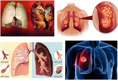 Ung thư phổi – căn bệnh không chỉ riêng người hút thuốc lá, 78379, Ms Hạnh Dung, Blog MuaBanNhanh, 08/01/2018 12:03:25
