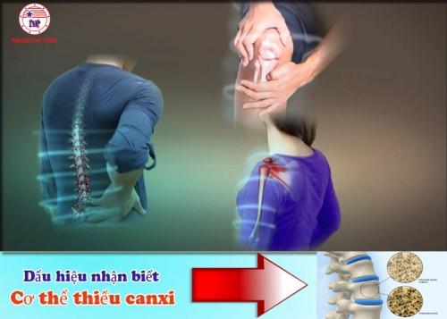 Dấu hiệu cơ thể đang thiếu Canxi bạn nên biết, 80890, Mediphar Usa, Blog MuaBanNhanh, 08/05/2018 09:37:37