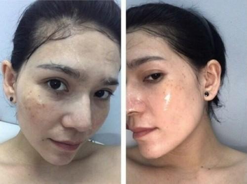 Cách trị mụn hiệu quả cho da nhạy cảm, 79583, Ruby Cosmetics, Blog MuaBanNhanh, 15/03/2018 13:18:03