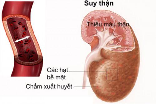 Thận yếu ảnh hưởng tới sinh lý ở nam giới, 85000, Trần Yến, Blog MuaBanNhanh, 01/09/2018 10:56:47
