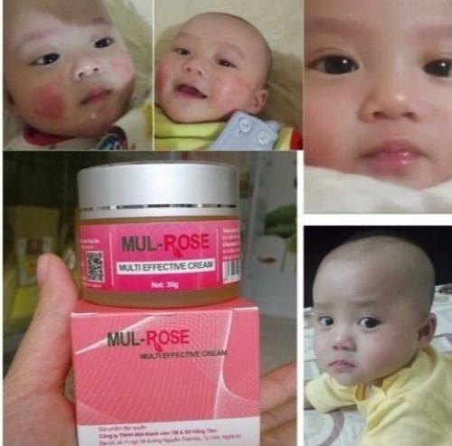 Kem Mul Rose có tốt không?, 87432, Phương Mai, Blog MuaBanNhanh, 15/11/2018 14:56:34