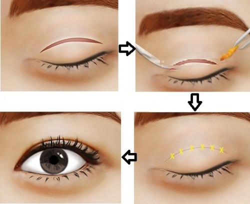 Phân tích ưu nhược điểm của nhấn mí mắt và cắt mí mắt, 88660, Ms.Ngoc Trinh Spa, Blog MuaBanNhanh, 02/01/2019 09:11:34