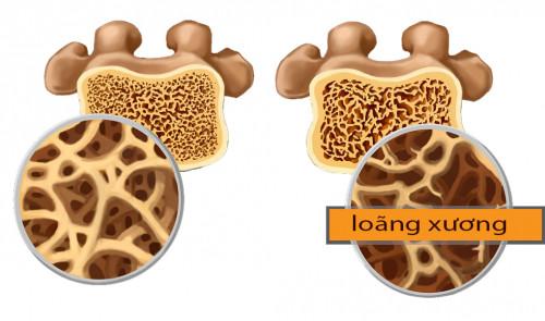 7 hiểu lầm phổ biến về bệnh loãng xương, 88876, Mediphar Usa, Blog MuaBanNhanh, 08/01/2019 08:49:58