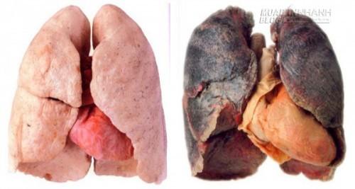 Mẹo hay làm sạch phổi của người hút thuốc lá, giảm nguy cơ ung thư, 71171, Nguyễn Thu Hương , Blog MuaBanNhanh, 12/05/2016 08:46:07