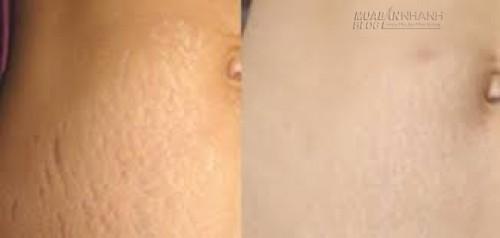 Tỏi – Thần dược là phẳng rạn da vùng bụng, hông, đùi hiệu quả 100%, 72218, Lavender, Blog MuaBanNhanh, 27/05/2016 09:37:56