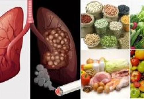 Ung thư phổi: Thực đơn và chế độ ăn uống chuẩn nhất dành cho người bị ung thư phổi, 74943, Lavender, Blog MuaBanNhanh, 09/04/2017 12:34:36