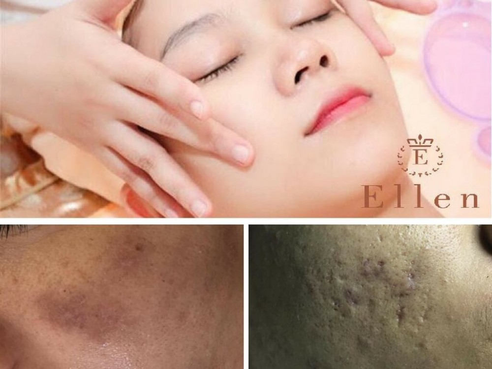 Chăm sóc da với mặt nạ mật ong