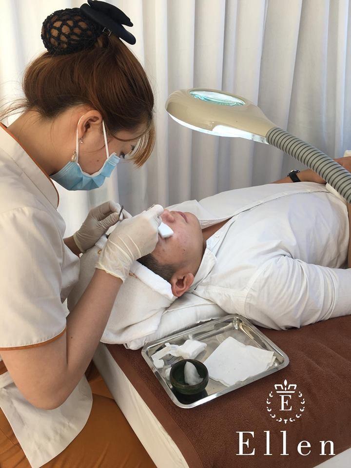 Mụn nội tiết là gì? Nguyên nhân và cách chăm sóc da mụn