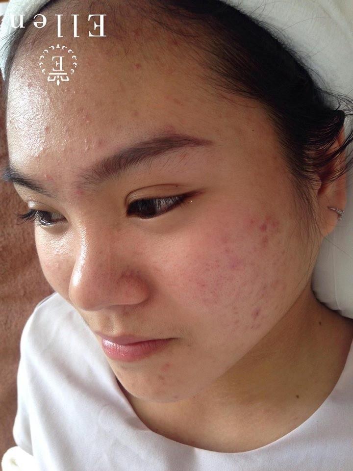 Mụn dưới da là gì? Nên làm gì khi bị mụn