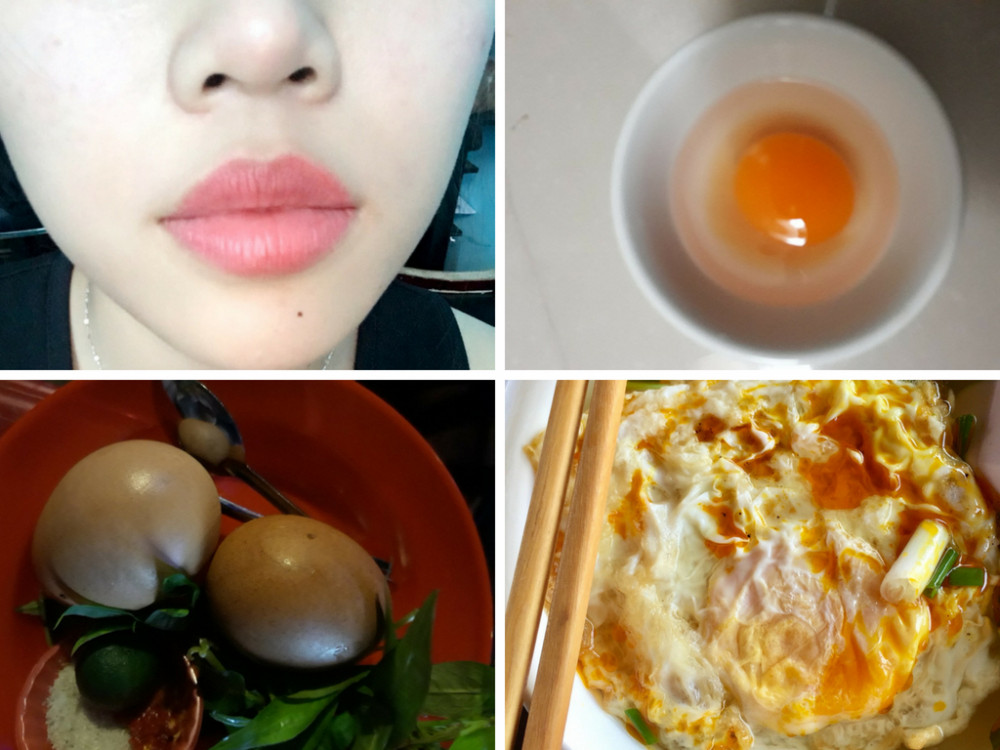 Phun môi ăn trứng có sao không?