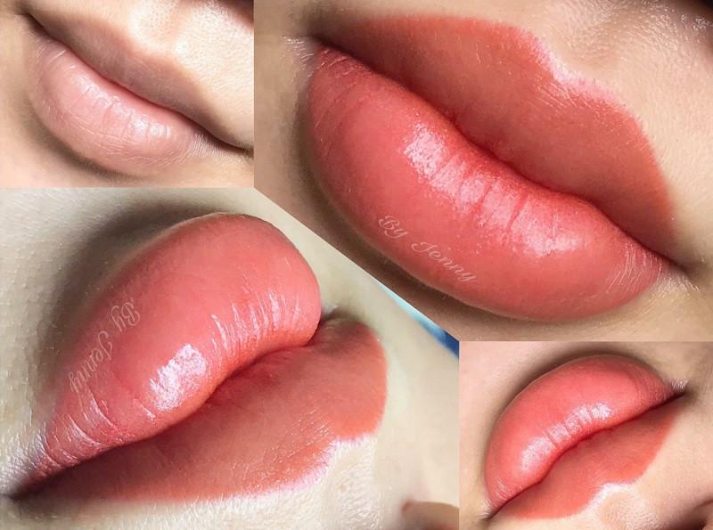 Môi thâm có nên phun môi không?
