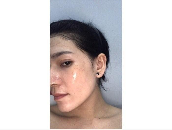 Cách trị mụn hiệu quả cho da dầu(1)