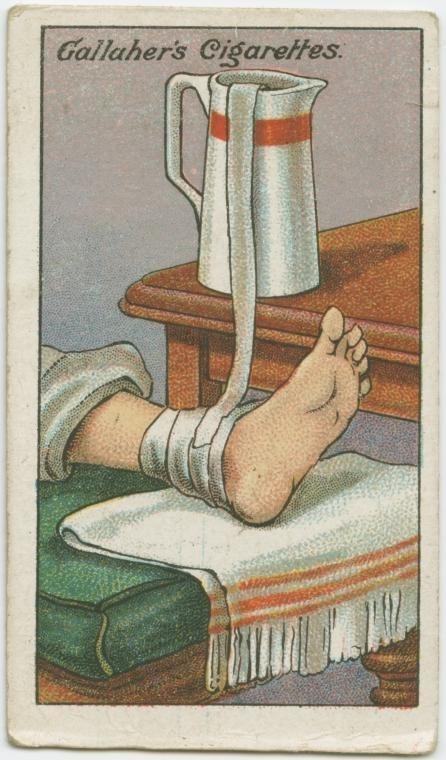 cách điều trị bong gân
