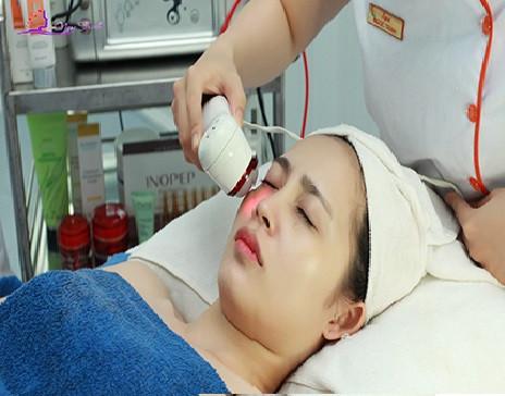 Tìm hiểu công nghệ trị nám da bằng tia laser