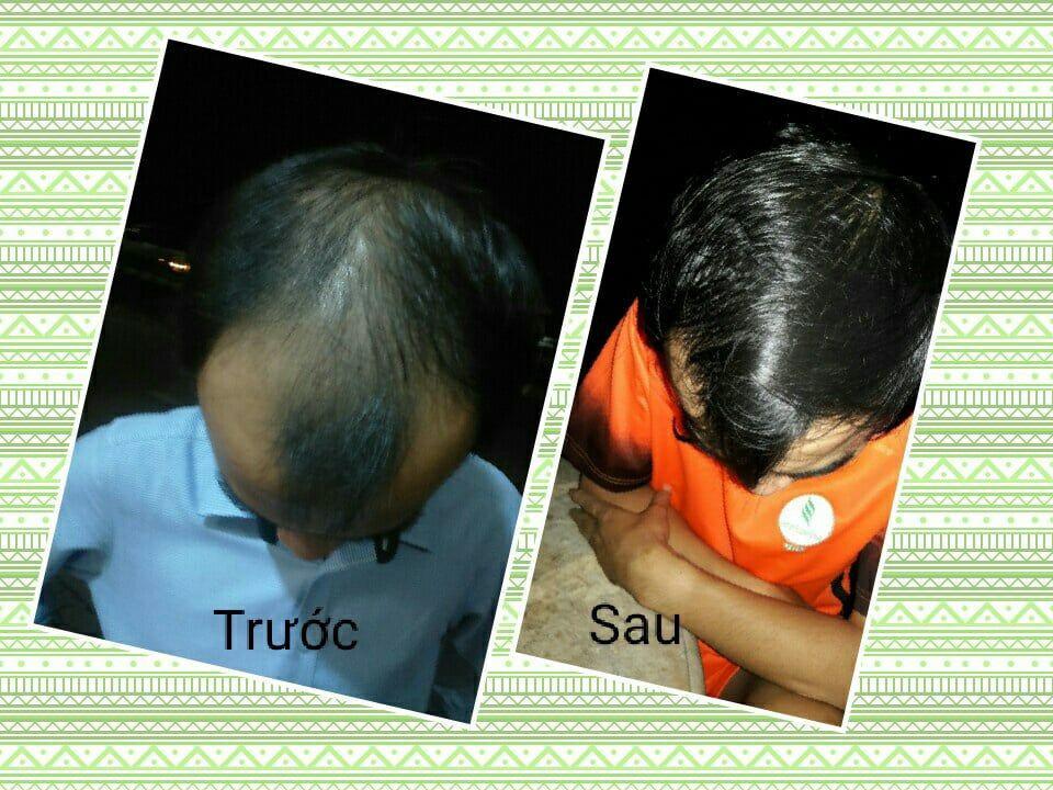 Neo Hair Lotion - Sản phẩm giúp mọc tóc hiệu quả