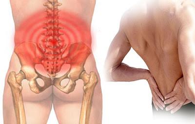Đau thắt lưng do nguyên nhân nào? Điều trị được không?