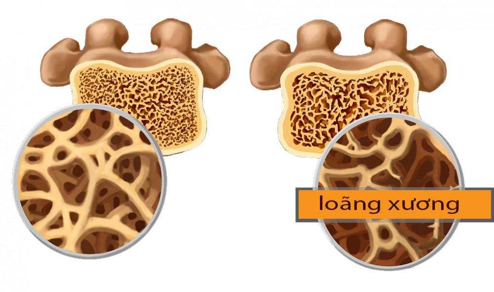 Loãng xương là một hiện tượng tự nhiên của quá trình lão hóa.