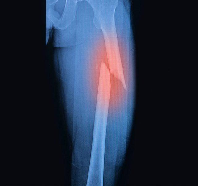 Gãy xương là nguy co duy nhất của loãng xương.