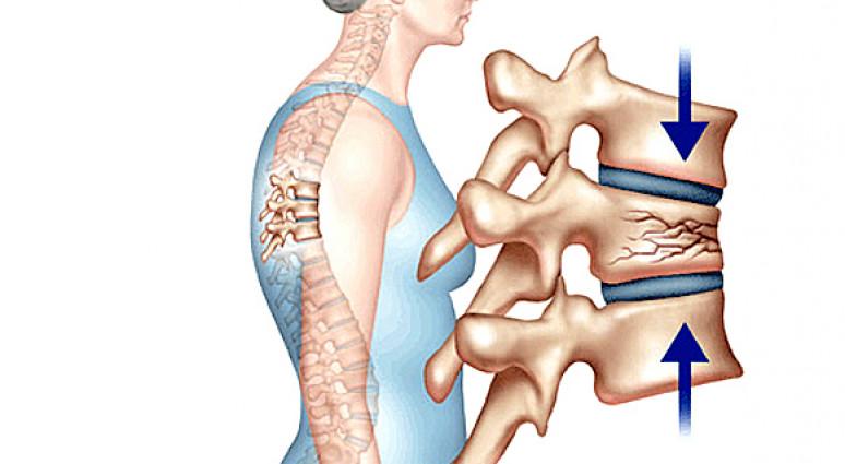 Bạn có thể cảm nhận được xương khớp bạn đang yếu dần đi?