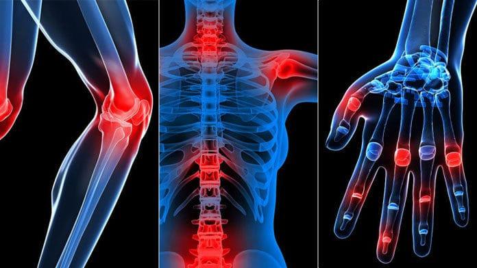 bệnh viêm xương khớp tránh ngay 6 loại thực phẩm này