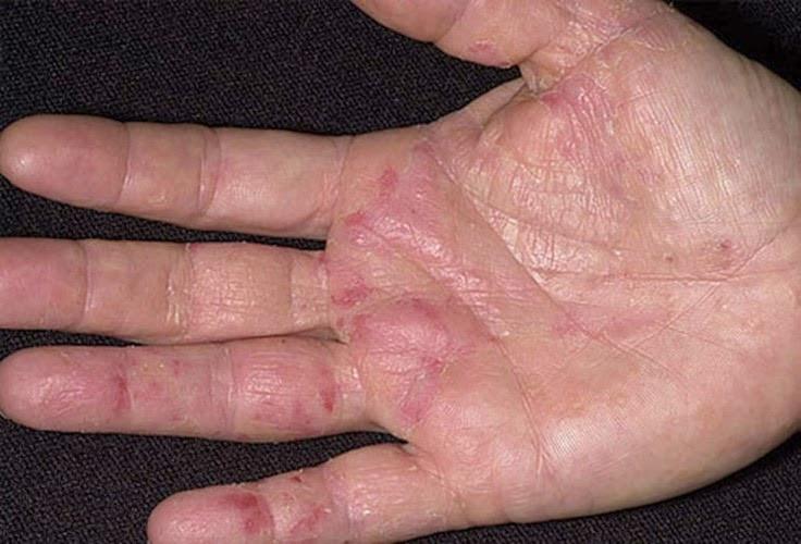 Viêm da dị ứng - Triệu chứng & nguồn cội gây bệnh