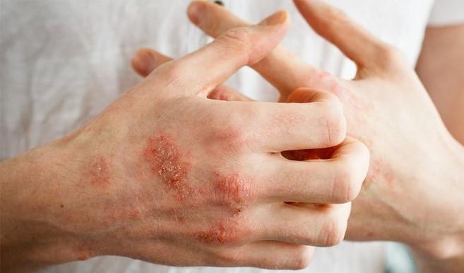 Bệnh chàm là gì? Với thể điều trị dứt điểm bệnh chàm không?