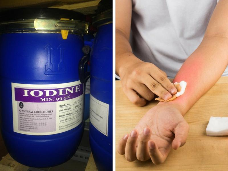 Cách xử lý bị bỏng khi sử dụng hóa chất