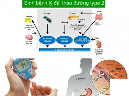 Tiểu đường tuýp 2 (type 2) là gì?