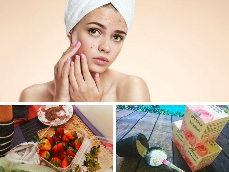 11 thói quen hàng ngày khiến cho da bạn bị mụn